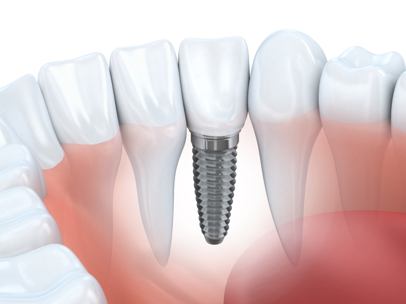 Dental Implants Considerations
