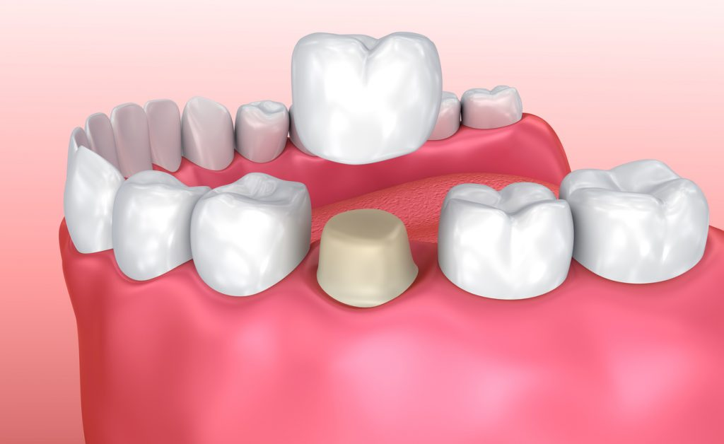 Dental crown installation process
