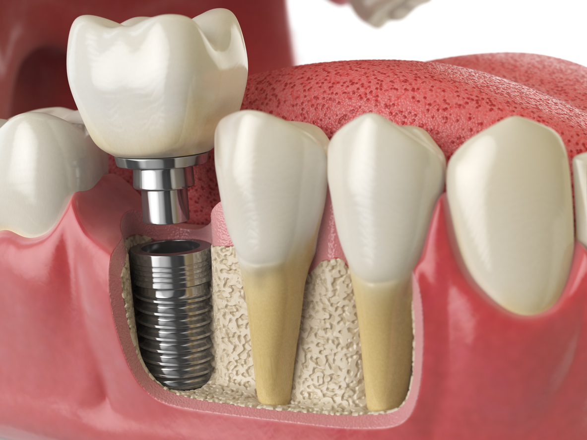 dental implants orlando