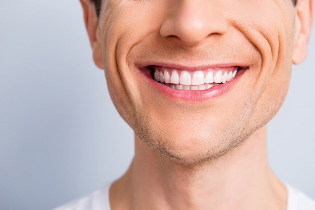 Orlando cosmetic periodontal procedures