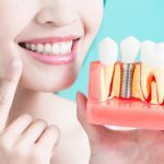 dental implants orlando
