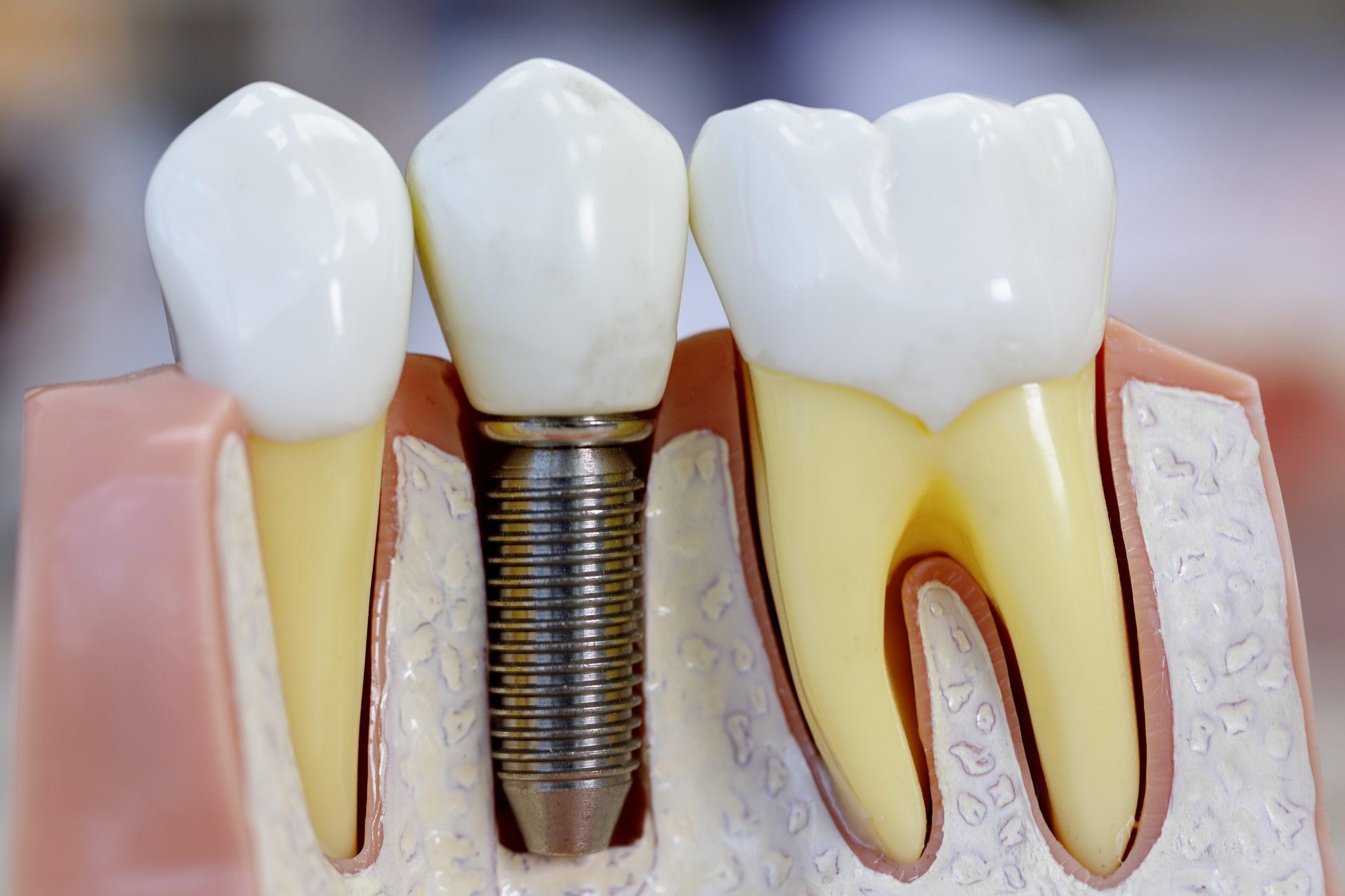 dental implants orlando fl
