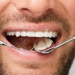 periodontal treatment winter springs fl