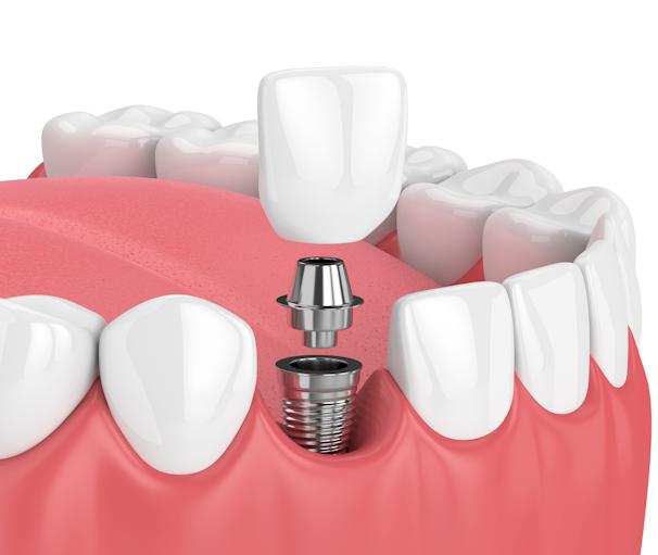 How Do Dental Implants Work?